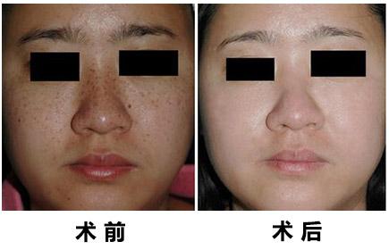 激光治療皮膚色素沉著